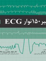 تفسیر ۱۵۰ نوار ECG   ویرایش پنجم – ۲۰۱۹