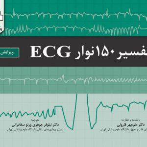 تفسیر ۱۵۰ نوار ECG | ویرایش پنجم – ۲۰۱۹