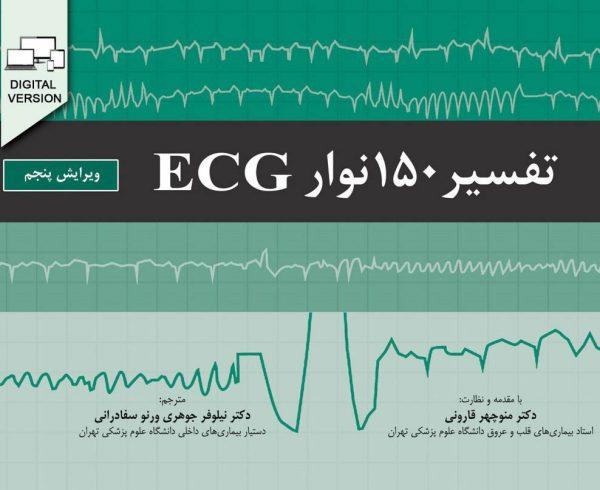 تفسیر 150 نوار ECG | ویرایش پنجم - 2019