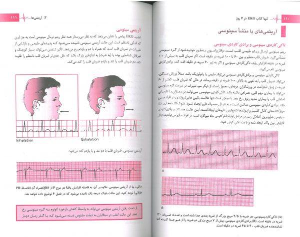 نمونه ترجمه تنها کتاب EKG در هفت روز - 3