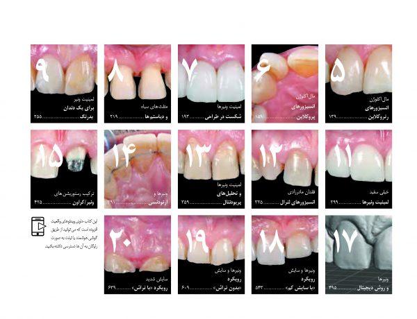 دندانپزشکی زیبایی - کتاب لمینت و ونیر