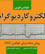 خواندن فوری الکتروکاردیوگرام | روش ساده برای خواندن EKG